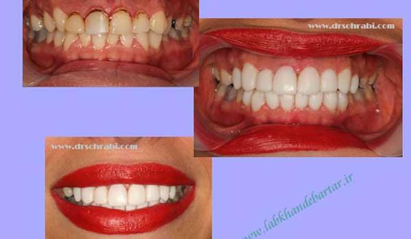 اصلاح طرح لبخند در راستای بهبود رنگ و شکل دندان