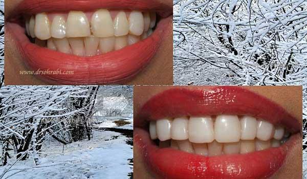 اصلاح طرح لبخند جهت درمان بهم ریختگی دندان