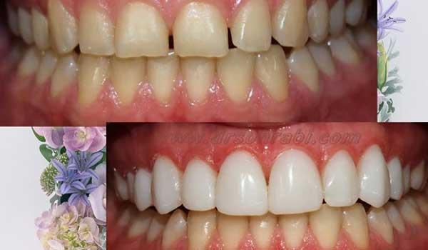 اصلاح طرح لبخند با بستن فاصله دندان