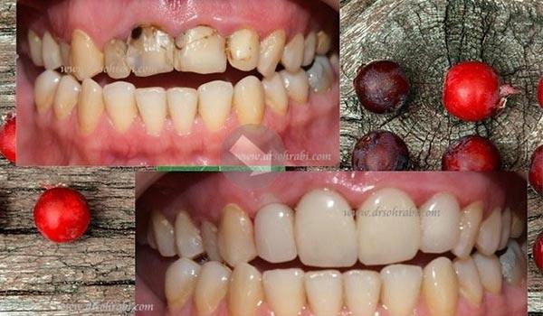 طراحی خط لبخند با ترمیم دندان