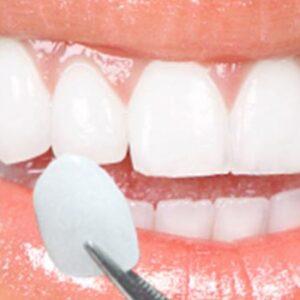 سفید کردن دندان با ونیر کامپوزیت