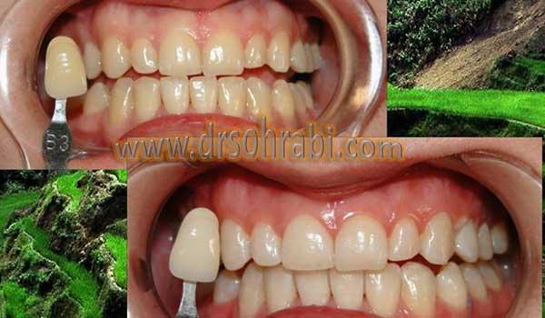 دندانپزشک زیبایی و خدمات بلیچینگ