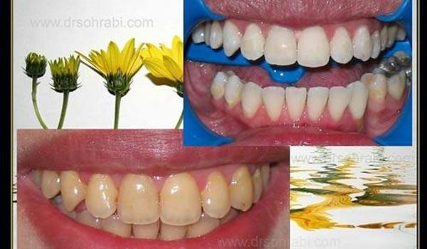 بلیچینگ و سفید کردن دندان