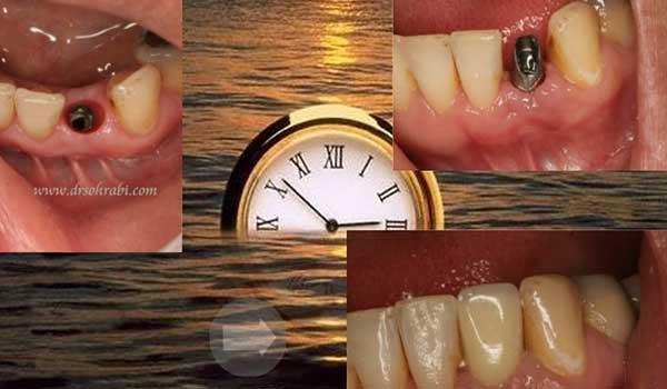 ایمپلنت و دندانپزشک زیبایی