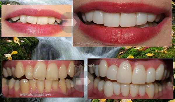 درمان کرادینگ و دندانپزشک زیبایی