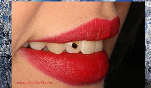 دندانپزشک زیبایی و کاشت نگین