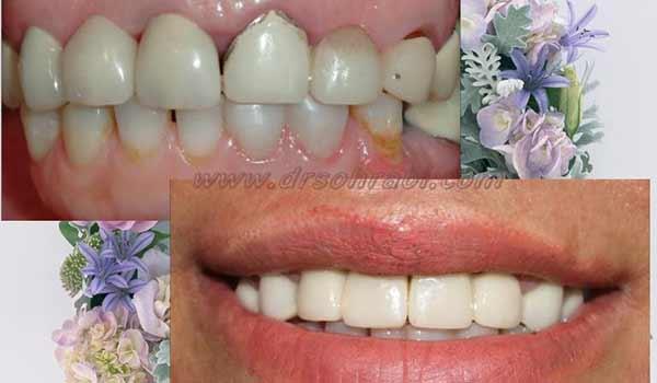 روکش های سرامیکی با دندانپزشک زیبایی