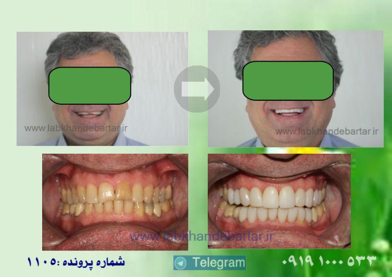 ونیر کامپوزیت 1105 و بازسازی طرح لبخند