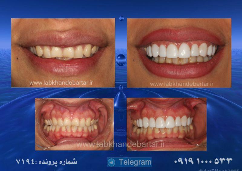 لبخند هالیوودی 7194