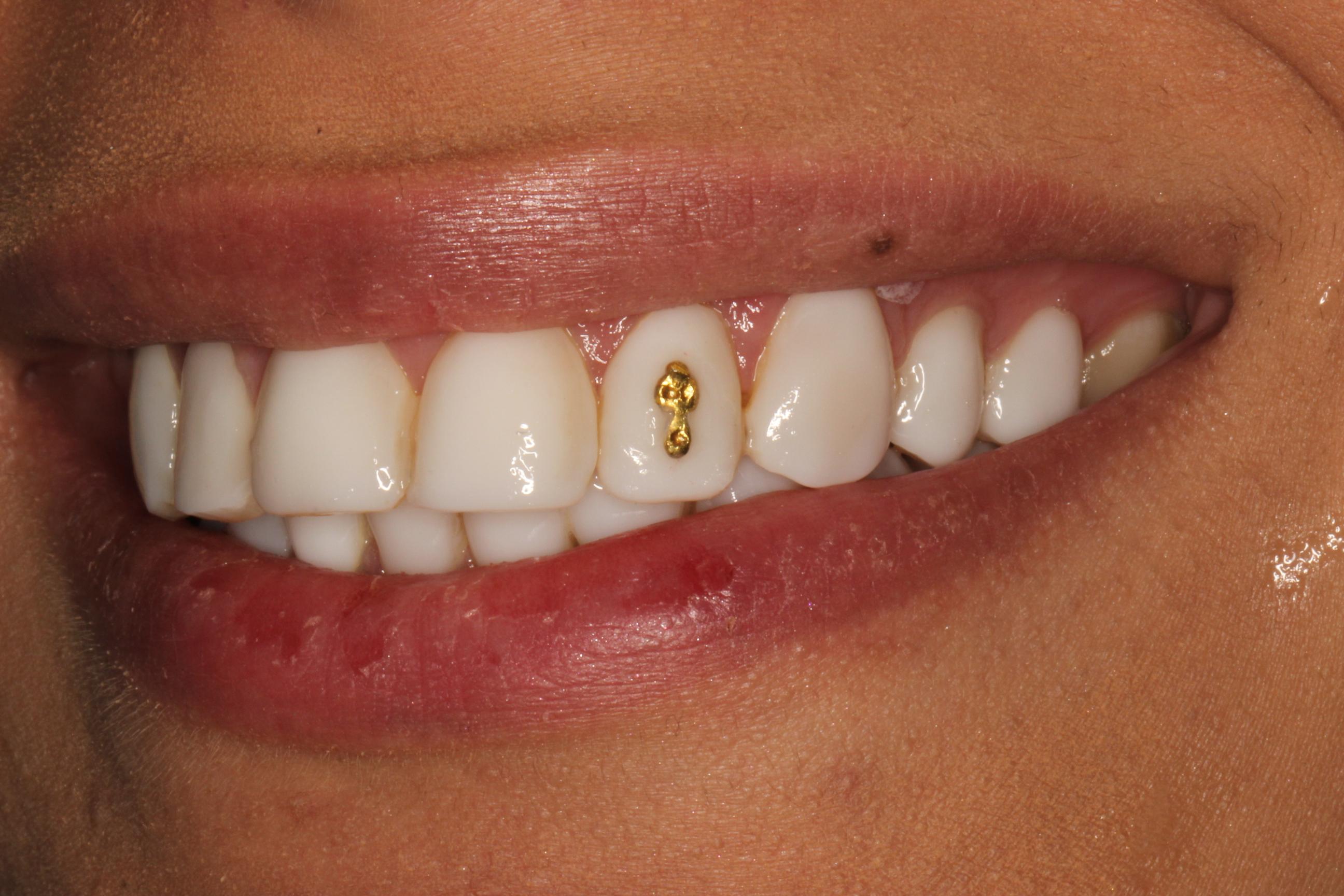 نگین طلای دندان