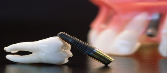 ایمپلنت دندانی و توصیه های بعد از درمان