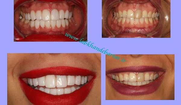 سفید کردن دندان با کامپوزیت مستقیم