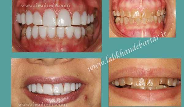 سفید کردن دندان با کامپوزیت لایرینگ