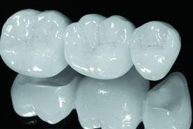 توصیه بعد از روکش دندان