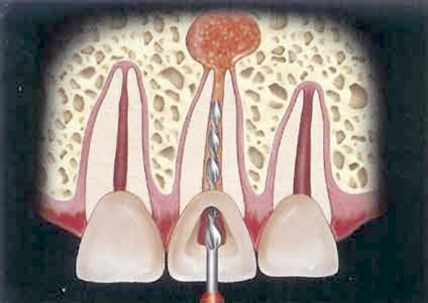 عصب کشی یا درمان ریشه