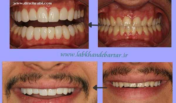 ونیر کامپوزیت بیست واحد دندان
