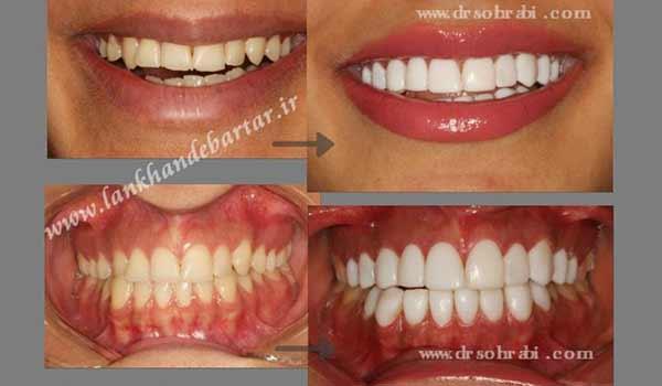 سفید کردن دندان 18 واحدی