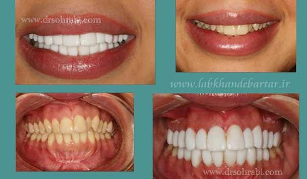 سفید کردن دندان در دو فک