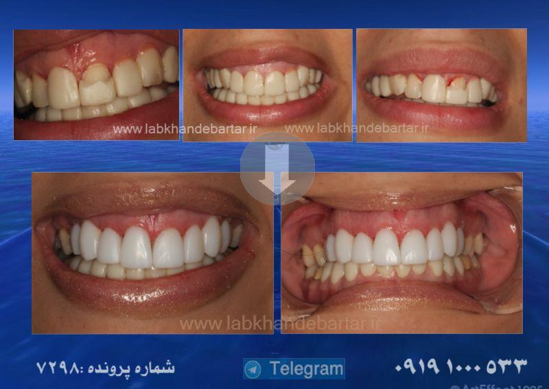 تعویض کامپوزیت دندان
