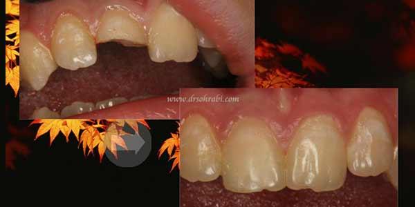 شکسنگی دندان در دندان درد