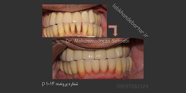 درمان دندان درد با رفع التهاب لثه
