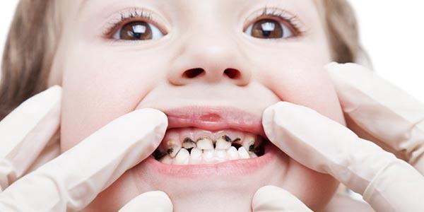 پوسیدگی دندان و راهکارهای پیشگیری