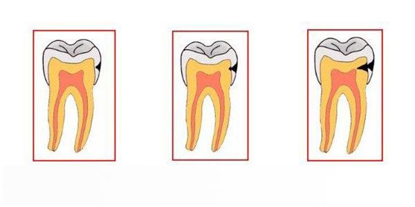 انواع پوسیدگی دندان