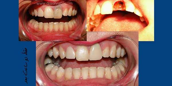 دندان درد و پوسیدگی دندان