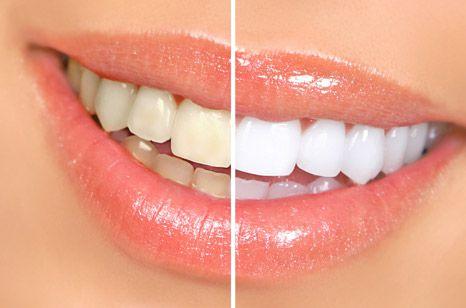 سفید کردن دندان با طب سنتی