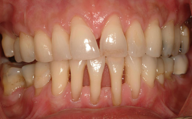 لقی دندان پس از جرمگیری