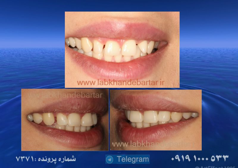 درمان دیاستم دندانی