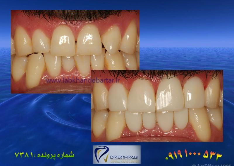 اصلاح نامرتبی دندان بدون ارتودنسی