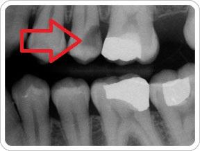 تشخیص پوسیدگی دندان از روی عکس
