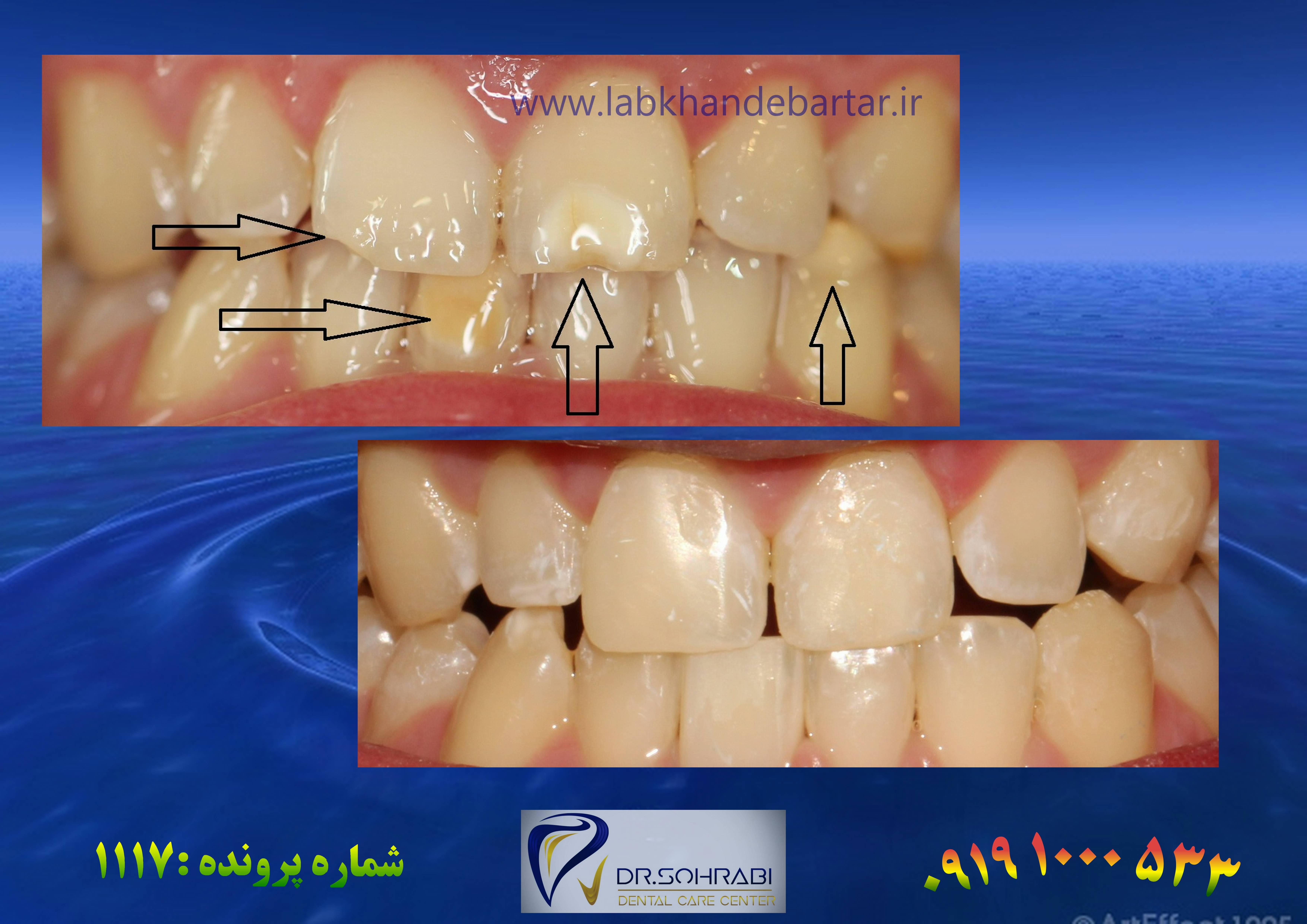 ترمیم دندان 1117