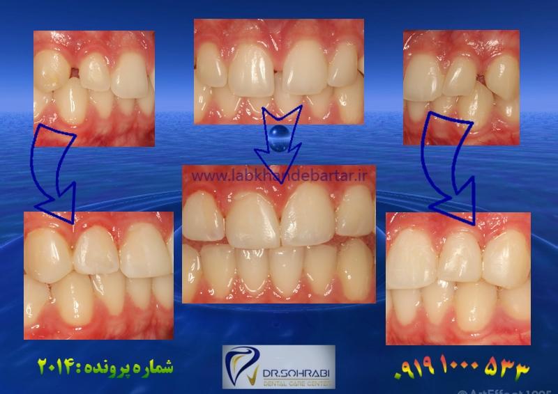 بستن فاصله دندانی ۲۰۱۴