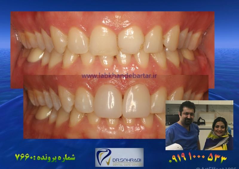 اصلاح شکل دندان