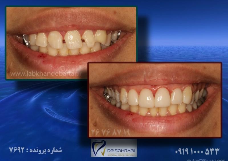ترمیم دندان به وسیله کامپوزیت