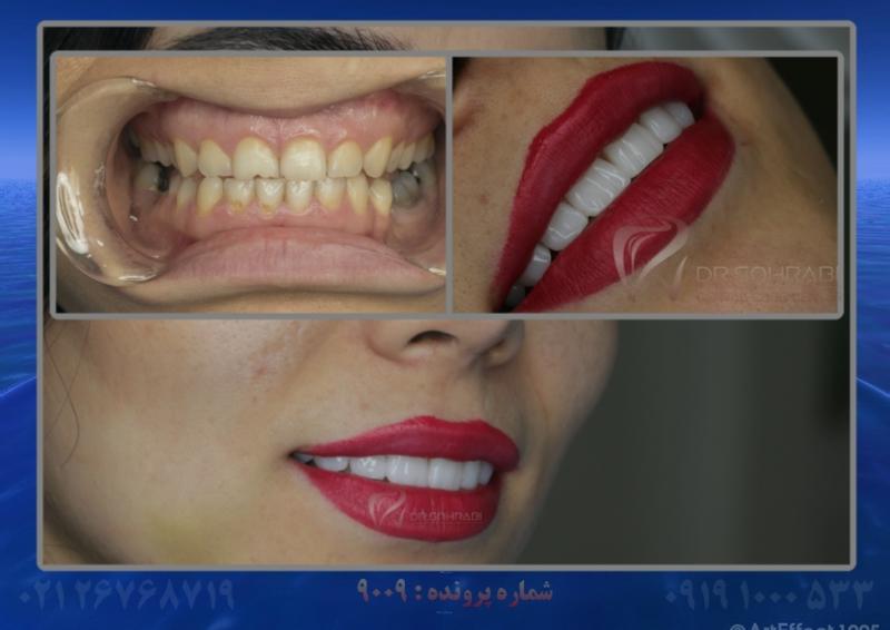 تکسچر دندان